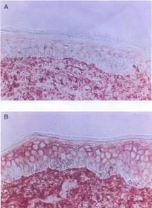 Haut mit Glykolsäure behandelt